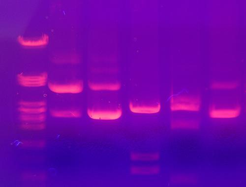 Gel electrophoresis is a classic method that uses electricity separates DNA fragments on a gel in